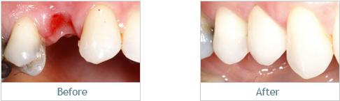 implants5