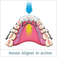 inman-aligner-action