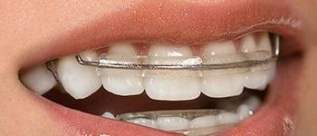 Inman Aligner Q1 Dental Dentist Melbourne