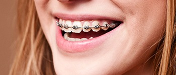 Metalbraces